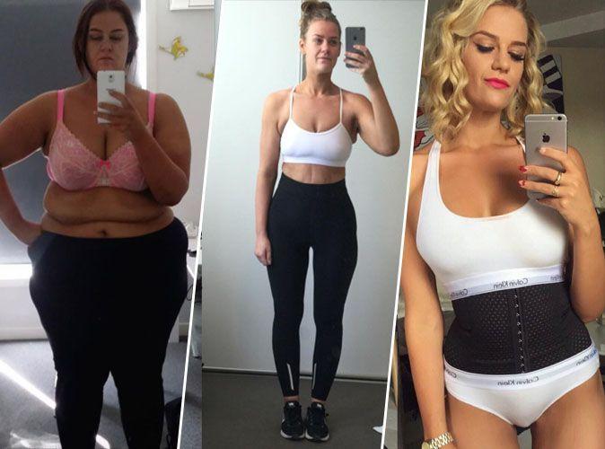 chirurgie apres perte de poids