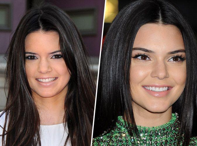 Photos : Dents de stars : Kylie Jenner, Blake Lively, Miley