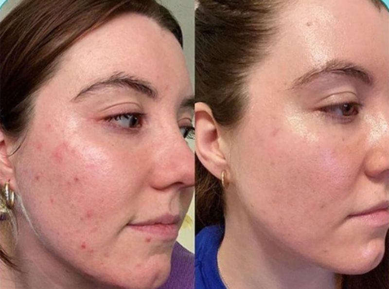 Cicatrices d'acné : ce sérum fait disparaître les tâches dès 2 semaines d'utilisation