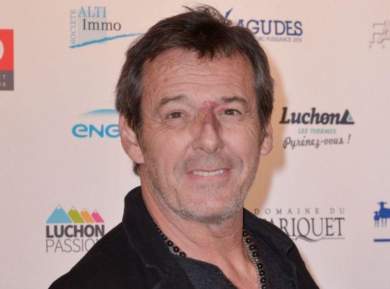 Jean-Luc Reichmann victime d'un accident de moto : torse nu, il montre son énorme cicatrice