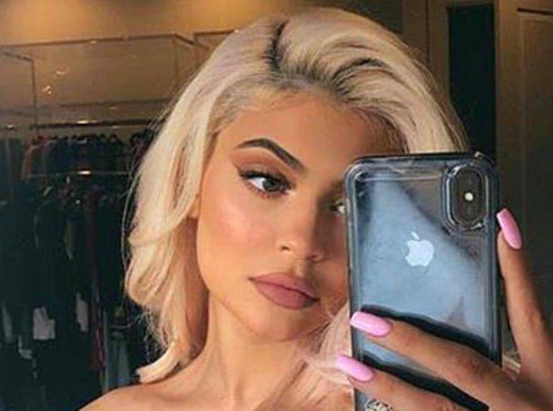 Kylie Jenner a repris les injections de botox !