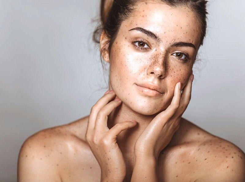 Grâce à ce produit miraculeux, vos boutons d'acné vont disparaître en quelques heures !