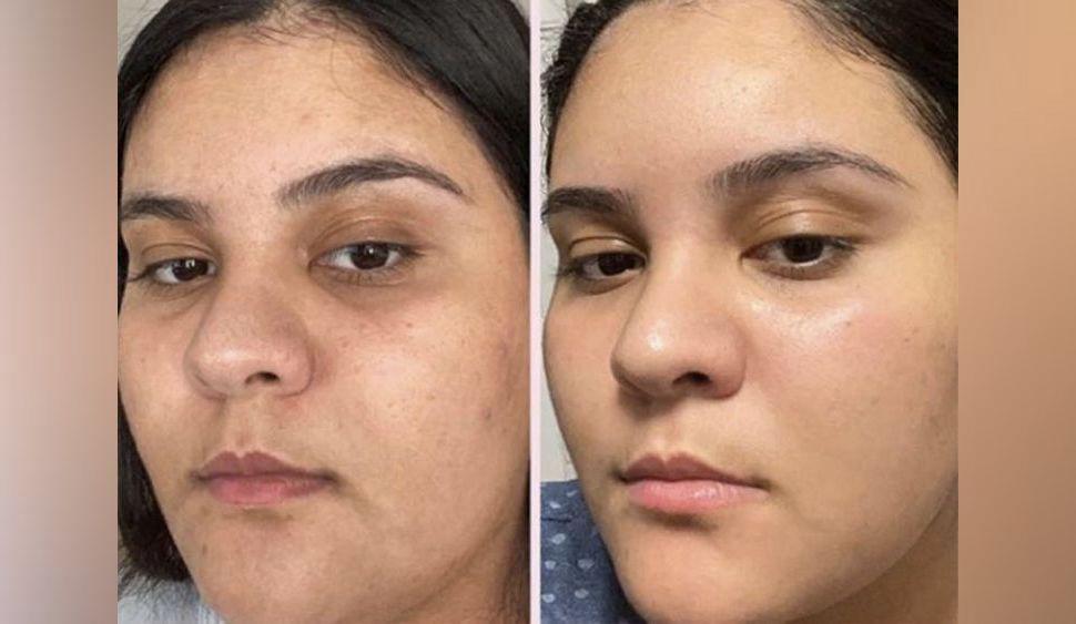 Soin visage : (re)découvrez les surprenants pouvoirs de la rose sur la peau du visage